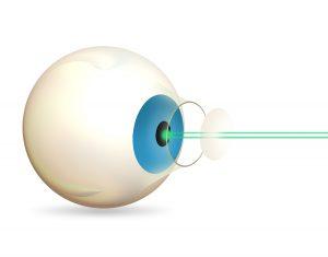 laser lasik eye surgery
